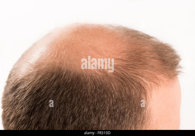 thesis on alopecia Induced alopecia are usually based on the experiences of health experts and based on a limited number of randomized and non-randomized study reports.