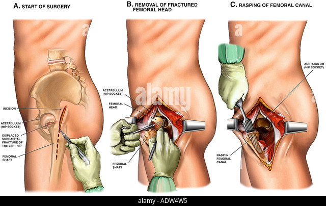 hip replacement stock photos & hip replacement stock images - alamy, Skeleton
