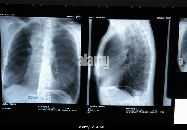 Chest X Ray Smoker Vs Nonsmoker