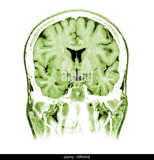 mri brain scan normal stock photos amp mri brain scan normal