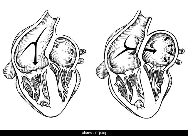 Tricuspid valve stockfotos tricuspid valve bilder alamy for Innenraumdesign studieren