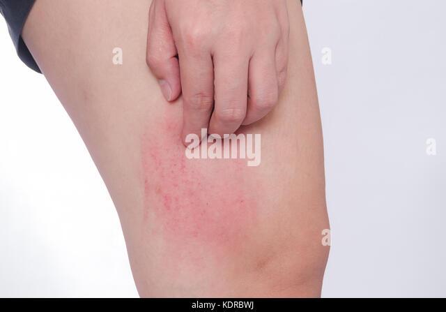 allergic to skin stockfotos allergic to skin bilder alamy. Black Bedroom Furniture Sets. Home Design Ideas